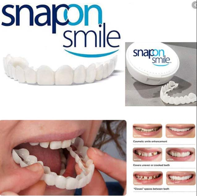 خرید اینترنتی لمینت متحرک دندان